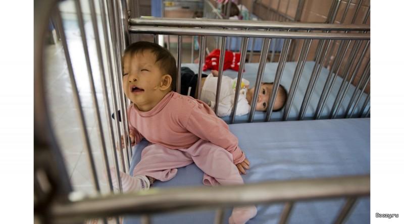 Последствия Agent Orange на вьетнамских детях