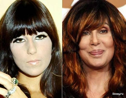шер до и после пластики фото