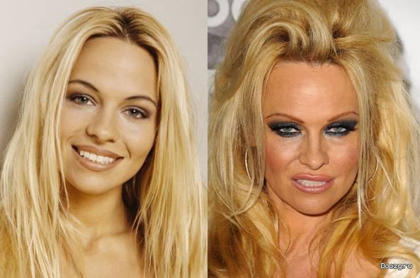 Звезды до и после пластической операции