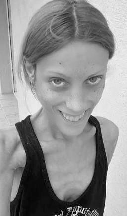 Анорексия: фото и информация о заболевании